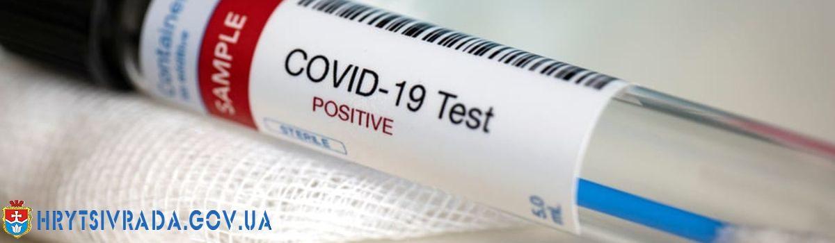 Показники для послаблення протиепідемічних заходів станом на 28.07.2020